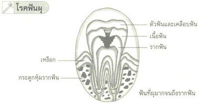 ปัญหาทางทันตกรรมที่ทำให้เกิดอาการปวดฟันคุด